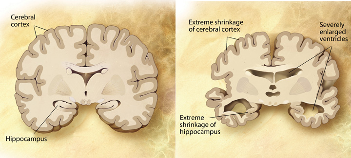 These diagrams illustrates a healthy human brain on the left and, on the right, a brain with Alzheimer's where the cerebral cortex and the hippocampus have reduced in size and ventricles have enlarged.