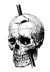 This diagram shows a metal rod through a human skull.