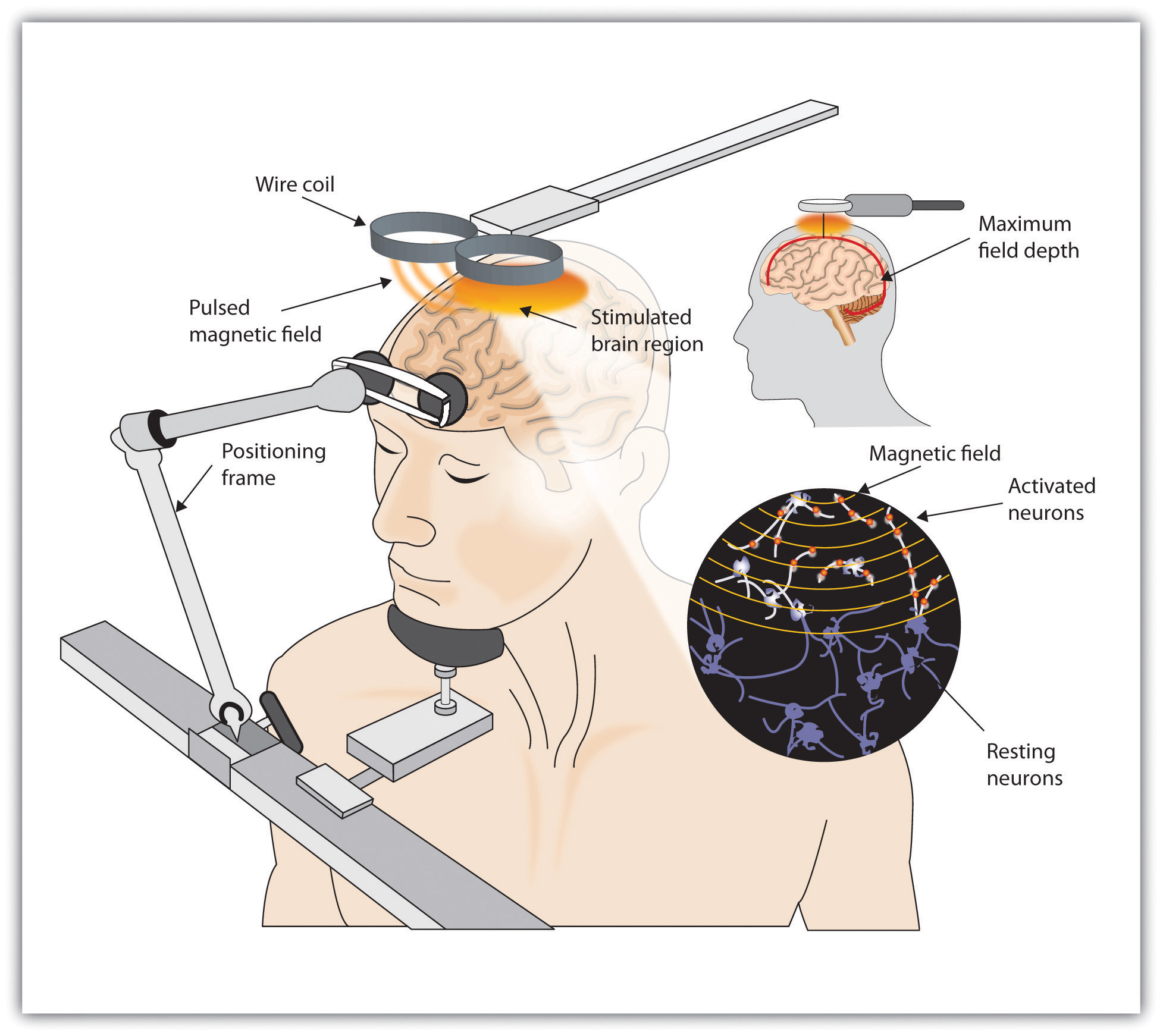 This diagram illustrates a man receiving transcranial magnetic stimulation (TMS) in which two wire coils pulse a magnetic field to electrically stimulate his brain.