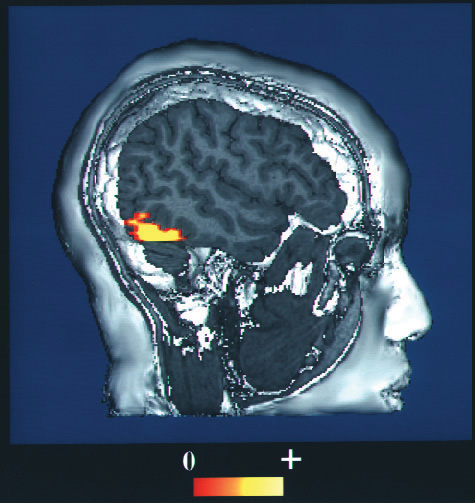 This functional magnetic resonance image (fMRI) shows a human brain with an area of increased activity.