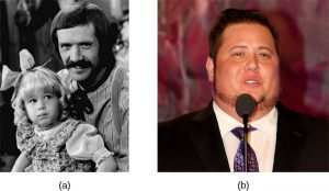 On the left, this picture shows Chastity Bono as a young girl with her father Sonny Bono; on the right, this picture shows Chaz Bono as an adult male.