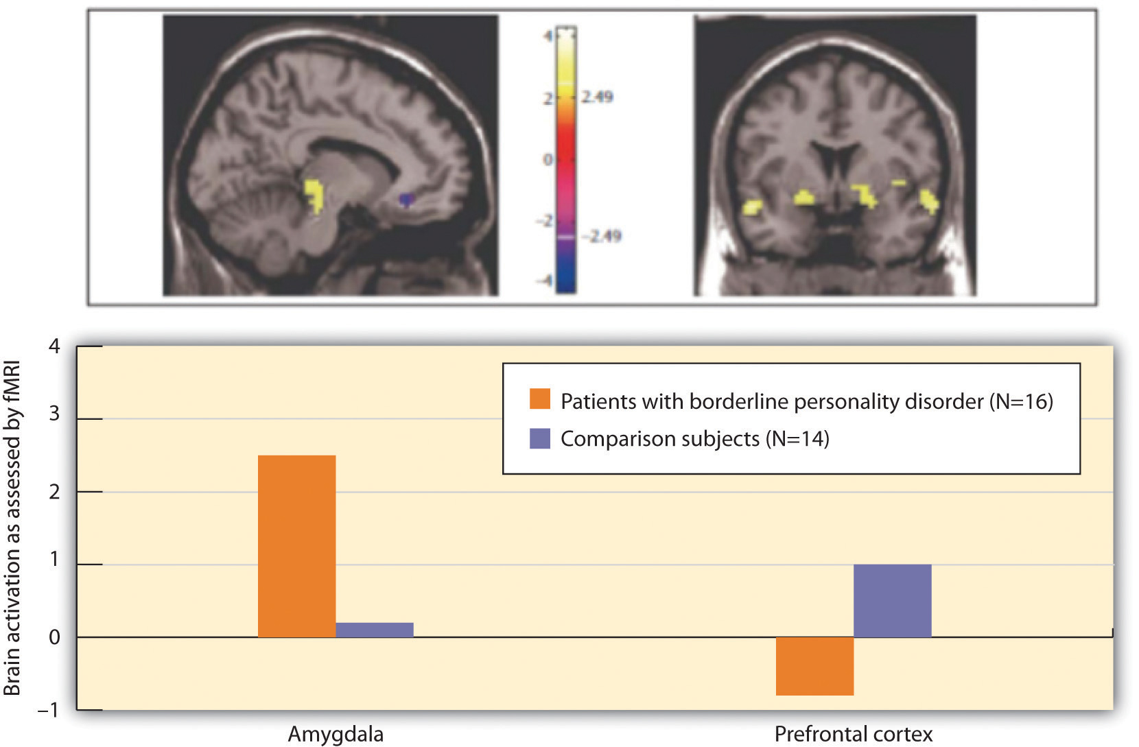 Above, these pictures show two brain scans comparing the level of brain activity in the emotional centres in the amygdala (left) and the prefrontal cortex (right); below, this chart contrasts brain activation as assessed by fMRI by amygdala and prefrontal cortex in patients with borderline personality disorder and comparison subjects.