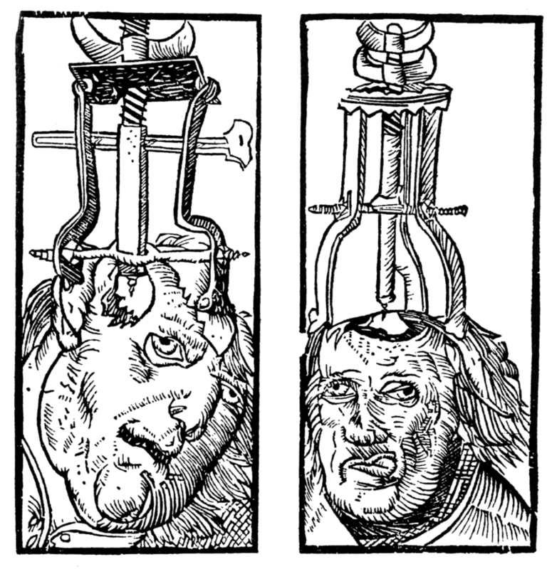 This diagram illustrates an engraving by Peter Treveris of a trepanation. A type of drill is clamped onto the head and used to bore a hole through the skull and expose the dura matter.